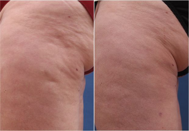 Cellulite removal after Cellusmooth Treatment