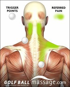 neck and sholder pain - where it starts and where you will actually feel it - Secret Spots (a.k.a. Trigger Points)