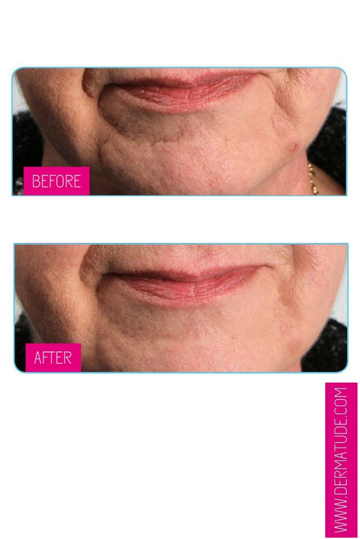 #Dermatude Before and After Mouth