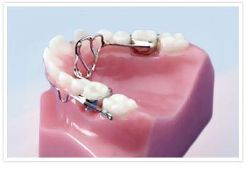 Tooth Fillings Brampton, General Dentistry Brampton ON