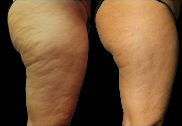 Before and after photos after Cellusmooth treatment