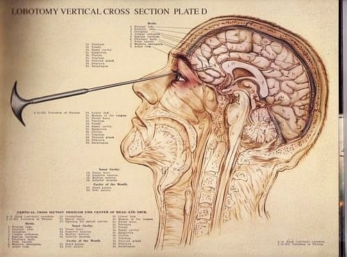 66 best images about Transorbital Lobotomy on Pinterest ...