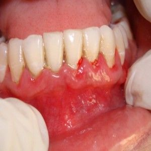 Know Several Methods To Improve Receding Gums