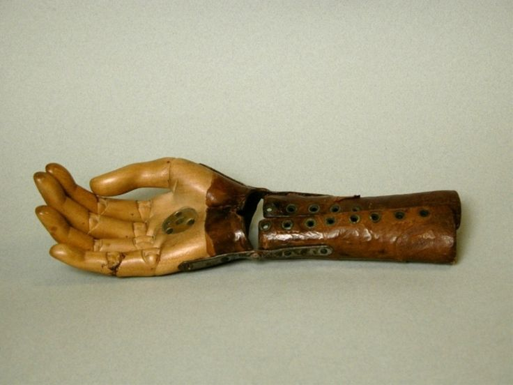 ladies artificial hand, nineteenth century: Lady S Artificial, Hand, Ladie S Artificial, Post, Medical, Ladies Artificial, Infection