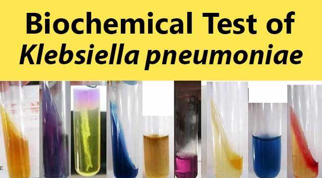 Biochemical Test and Identification of Klebsiella pneumoniae.                                                                                                                                                                                 Más