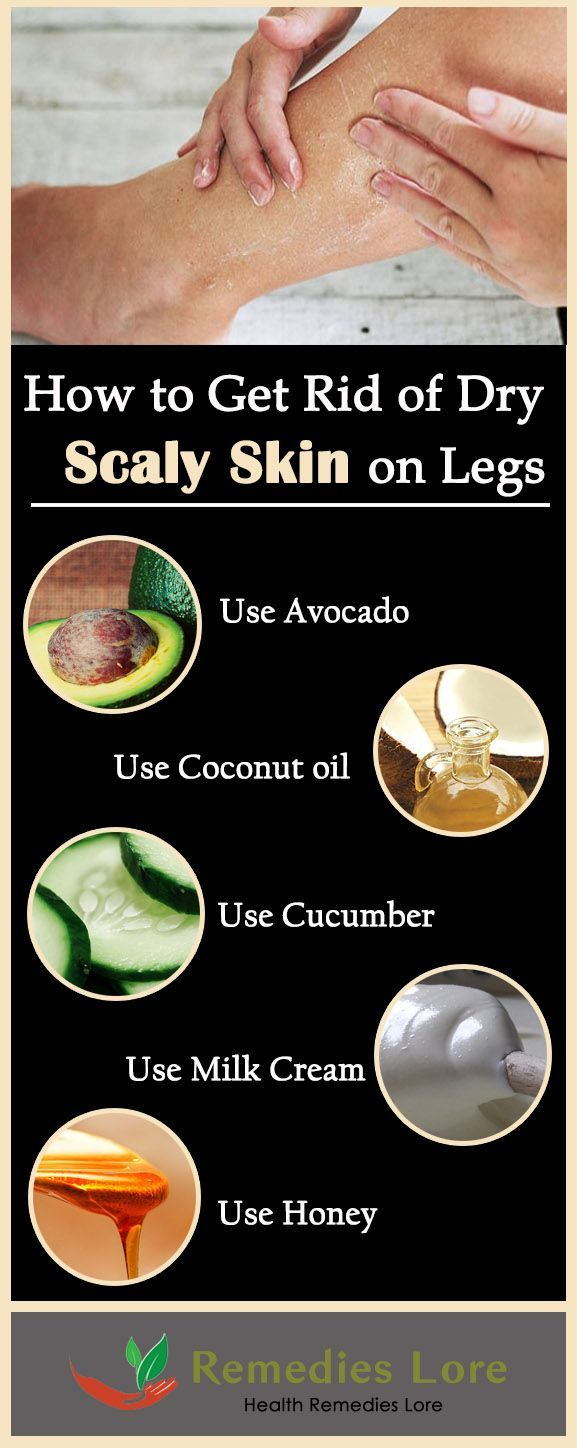 How to Get Rid of Scaly Skin on Legs #ScalySkin  http://www.remedieslore.com/how-to-get-rid-of-dry-scaly-skin-on-legs/