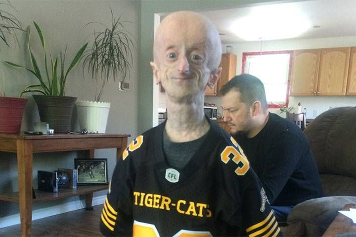 Devin Scullion has defied the odds more times in his 19 years than most will in an entire lifetime. Doctors said his rare disorder would kill him by age 12. He's turning 20 in two months.