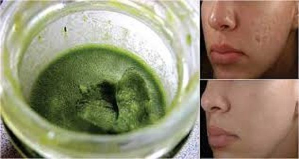 This Green Paste Will Remove Acne Scars From Your Face in Just 3 Days – Natural Medicine House