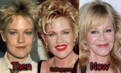 Melanie Griffith Plastic Surgery, Before and After Photos. #melaniegriffith #facelift #plasticsurgery #botox #beforeafter #eyelift