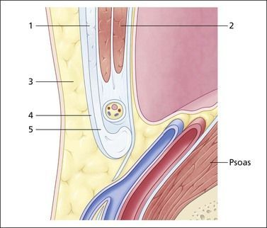 Sagittal section through the lower oblique muscles and inguinal canal. The oblique muscles with external oblique (1) anteriorly and transversus abdominis (2) posteriorly lie superior to the canal and spermatic cord. The subcutaneous fat (3) and deep fascia (4) lie anterior and blend with the external oblique fascia which inferiorly forms the inguinal ligament (5). The psoas muscle and femoral vessels run deep to the canal with the transversus abdominis fascia and peritoneum lying…