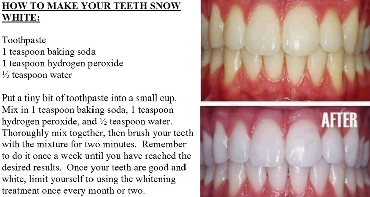 How To Make Your Teeth Snow White Beauty tips and