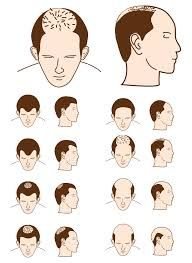 "Getting rid from Baldness open the link to explore details.regarding ""Reasons and Treatment of Baldness"""