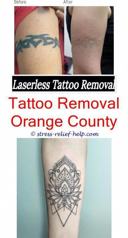tattoo removal near me how to remove water tattoos - how much to ...