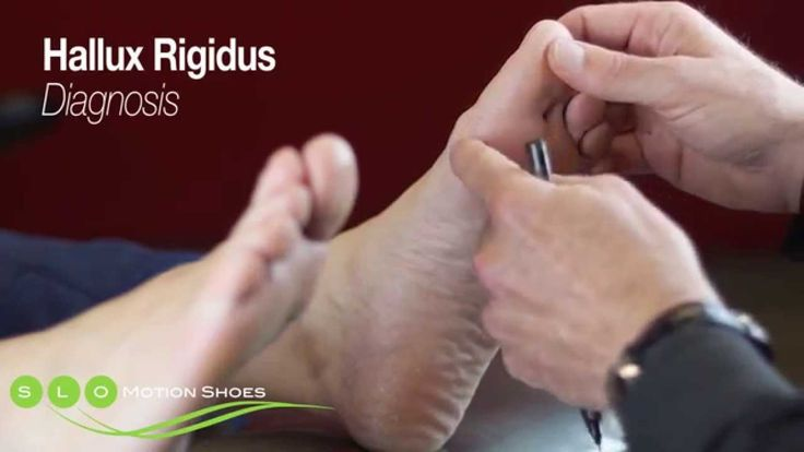 Natural Cure For Hallux Rigidus