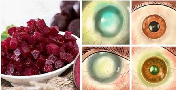 Doktori vypustili von článok o kombinácií 3 potravín, ktorá vám vráti zrak a vyčistí pečeň. – Báječné Ženy