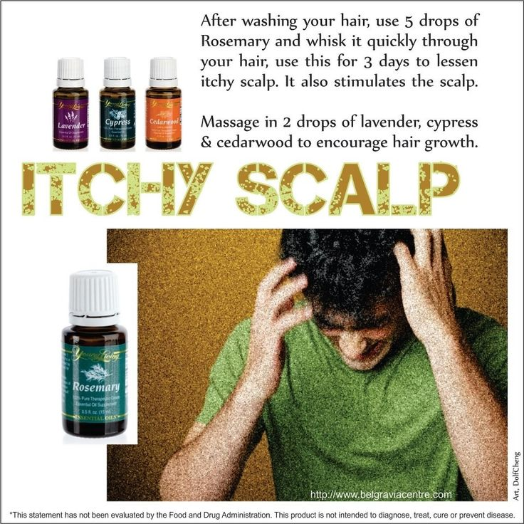 Rosemary Essential Oil For Itchy Scalp