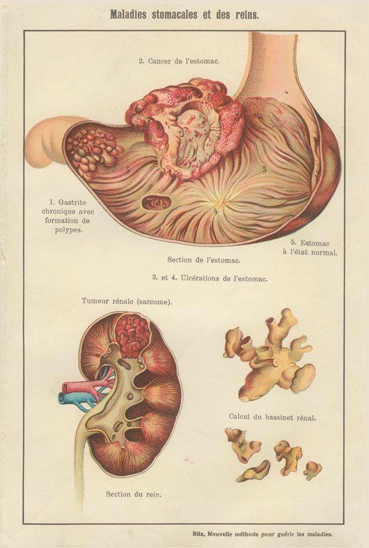 Maladies stomacales et des reins. F. E. Bilz (https://www.pinterest.com/pin/287386019949789267/) - Nouvelle Méthode pour guerir les maladies. C. 1900.
