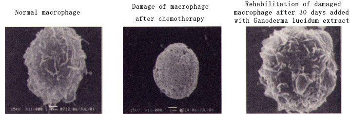 Ganoderma macrophage rehabilitation