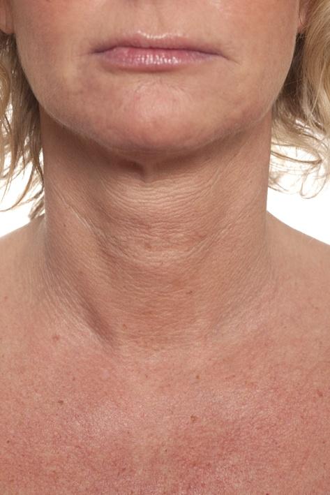 ETTER behandling med Restylane er de små linjene mellom brystene borte og huden har fått fukt og glød.