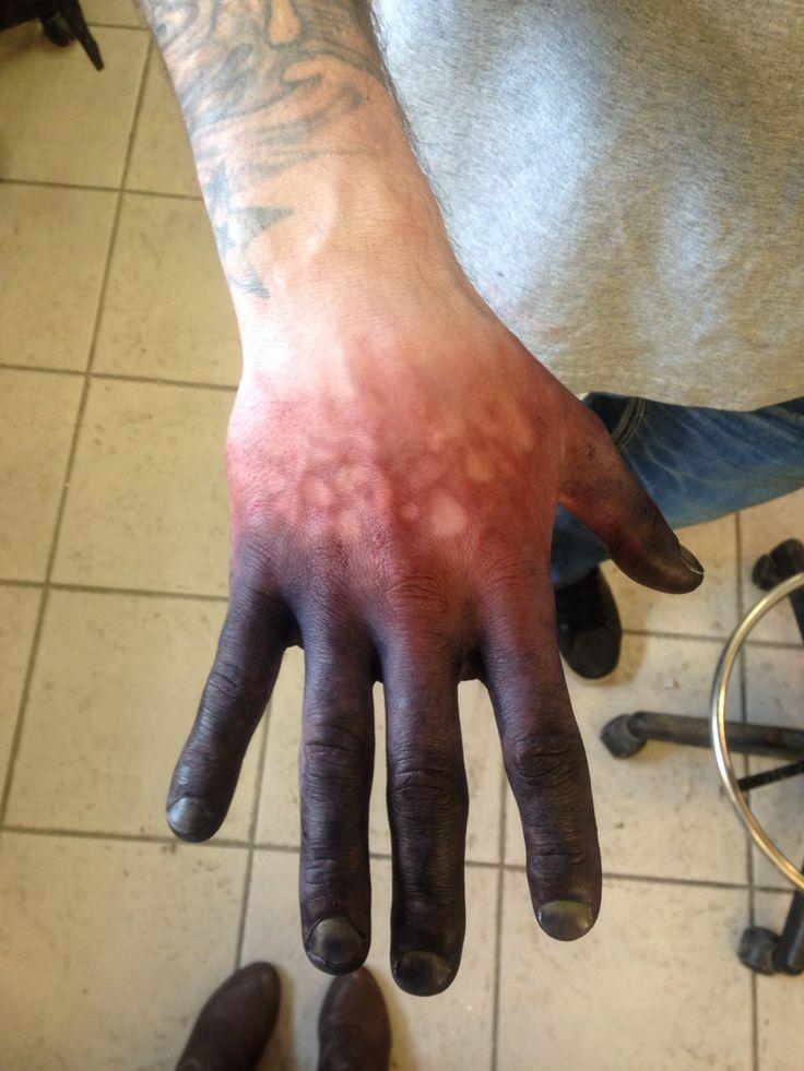 Frostbite hands makeup