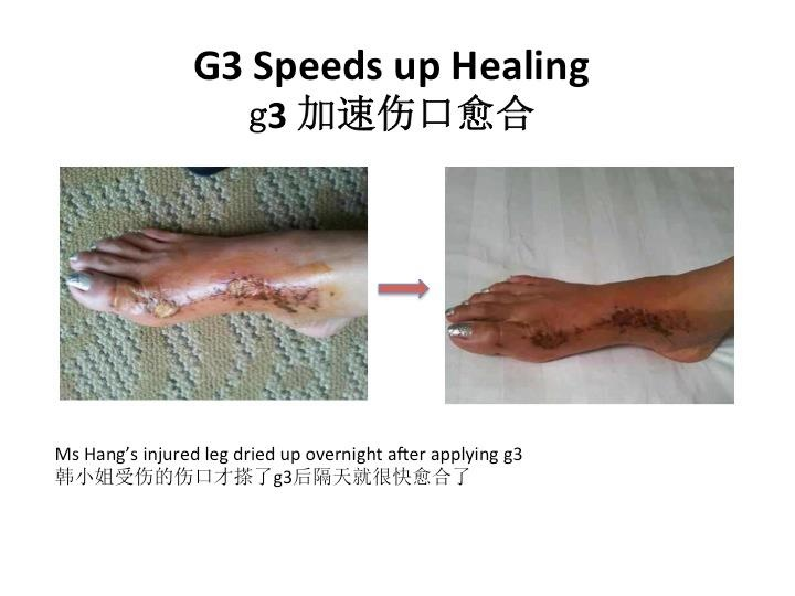Speeds up healing process when applied.