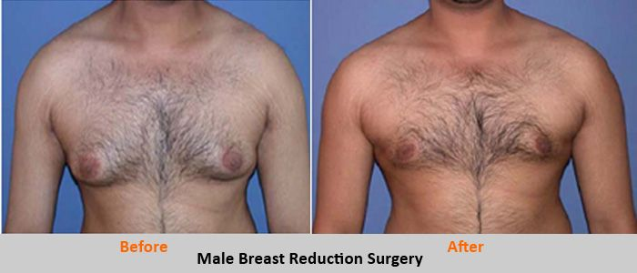 Breast Reduction Surgery In Lahore