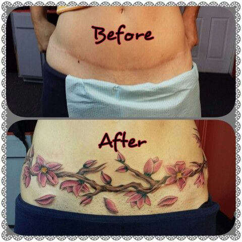 1000 ideas about tummy tuck tattoo on pinterest scar for Tattoo over tummy tuck scar