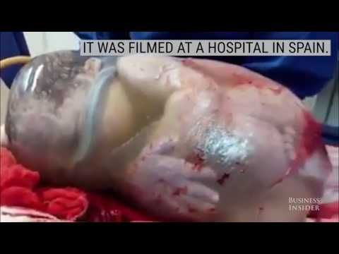 "Gynecology: Baby being born within the amniotic sac ""caul birth"" (VIDEO) – – Janet Arnold"