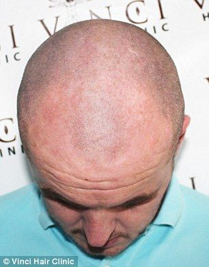 It is claimed hair tattoos are pain free, with most clients describing a light tingling sensation in the scalp. Bryan Slaven is pictured before ndergoing the Micro Scalp Pigmentation treatment
