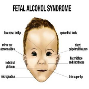 the effects of alcohol abuse on developing fetal alcohol syndrome
