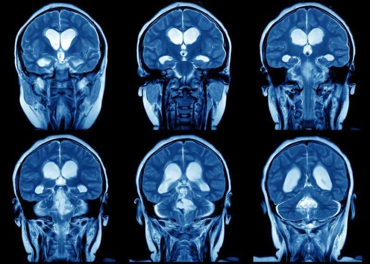 [WEB SITE] What Is Brain Plasticity and Why Is It So Important? | TBI Rehabilitation
