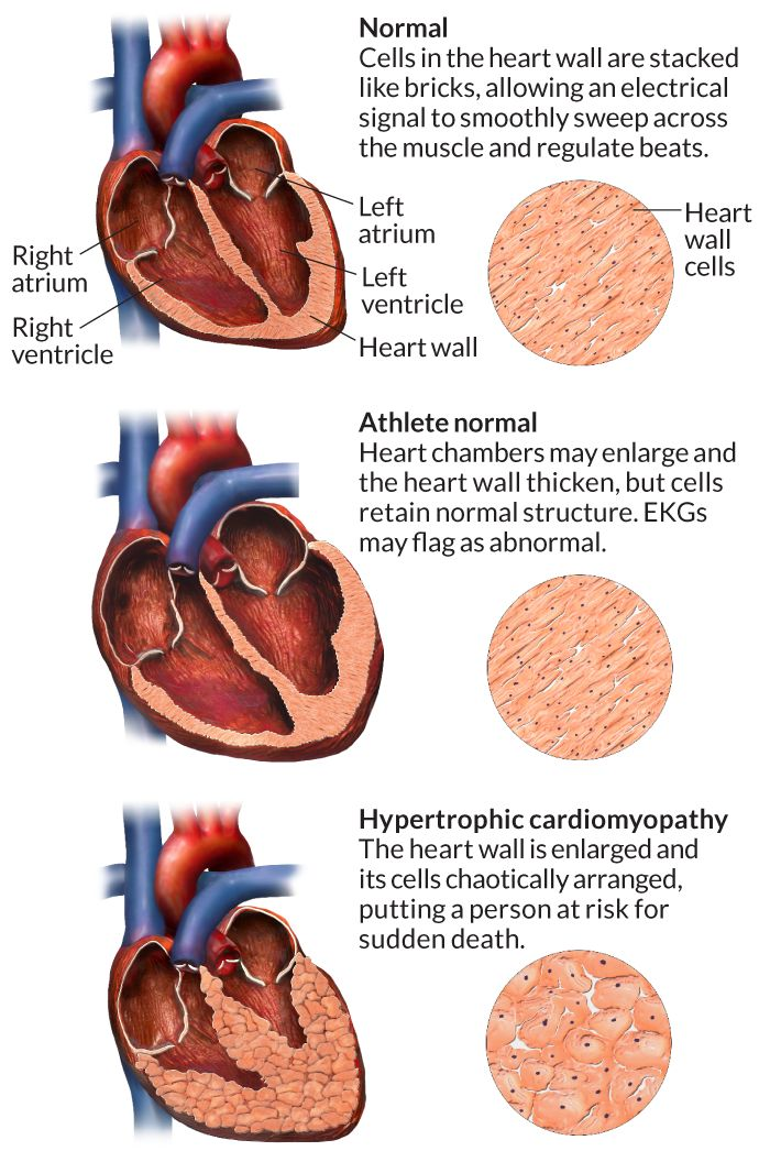 Sudden death - Hypertrophic cardiomyopathy