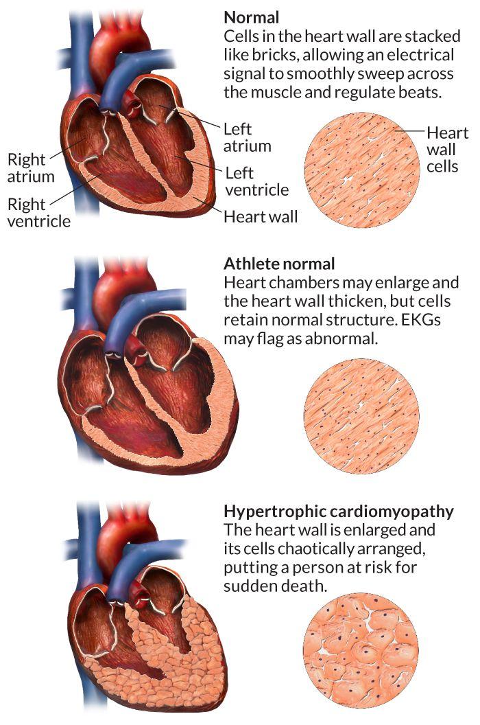 Sudden death - Hypertrophic cardiomyopathy