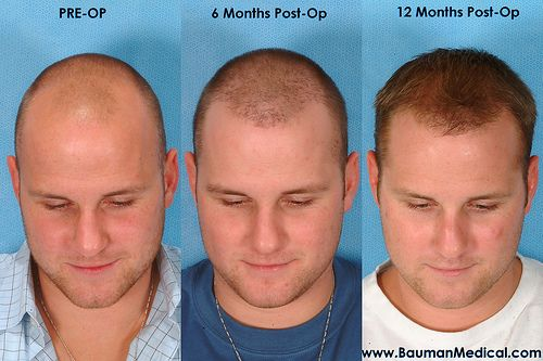 The Reviva Clinic is an international center specializing in both FUE and Strip restoration methods. Reviva clinic offers its patients only the best surgical hair loss solutions with the top surgeons in India.