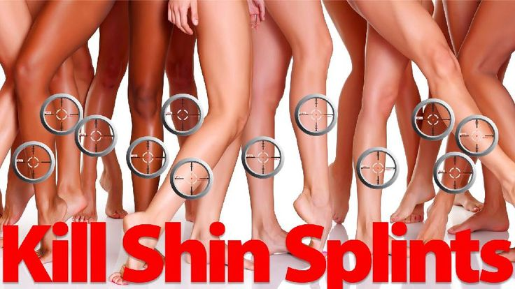 Banish Shin Splints Forever With One Magical Exercise