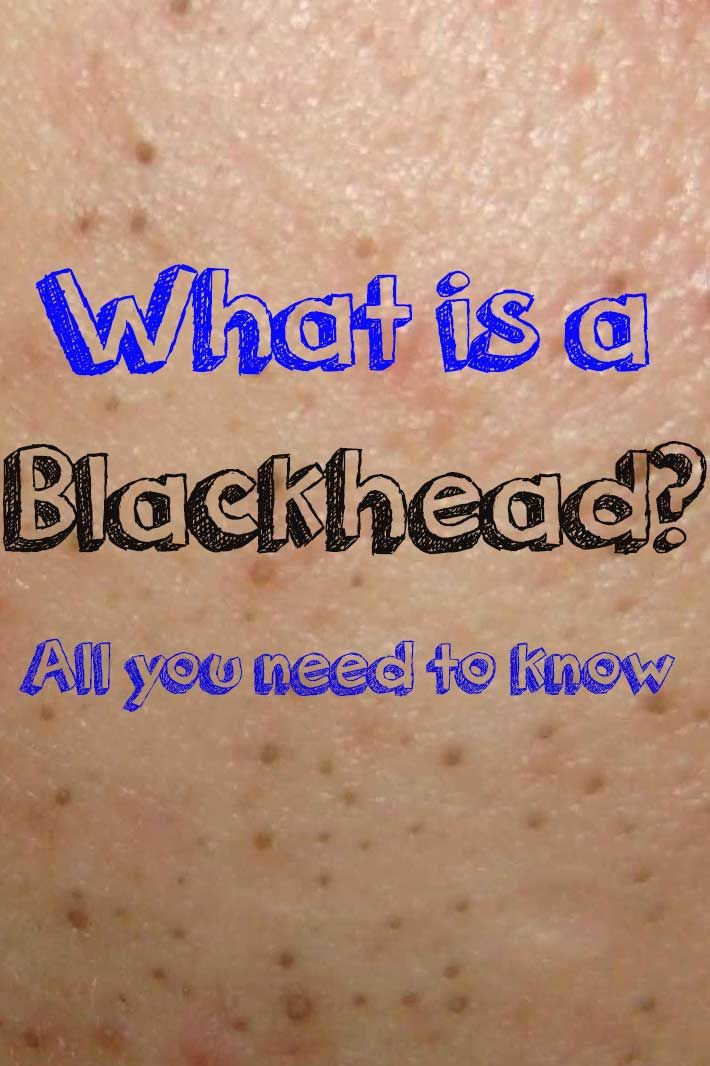 Ever wondered what a Blackhead is? Here is all you need to know!