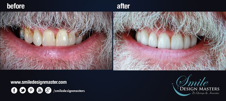 how to fix translucent teeth naturally