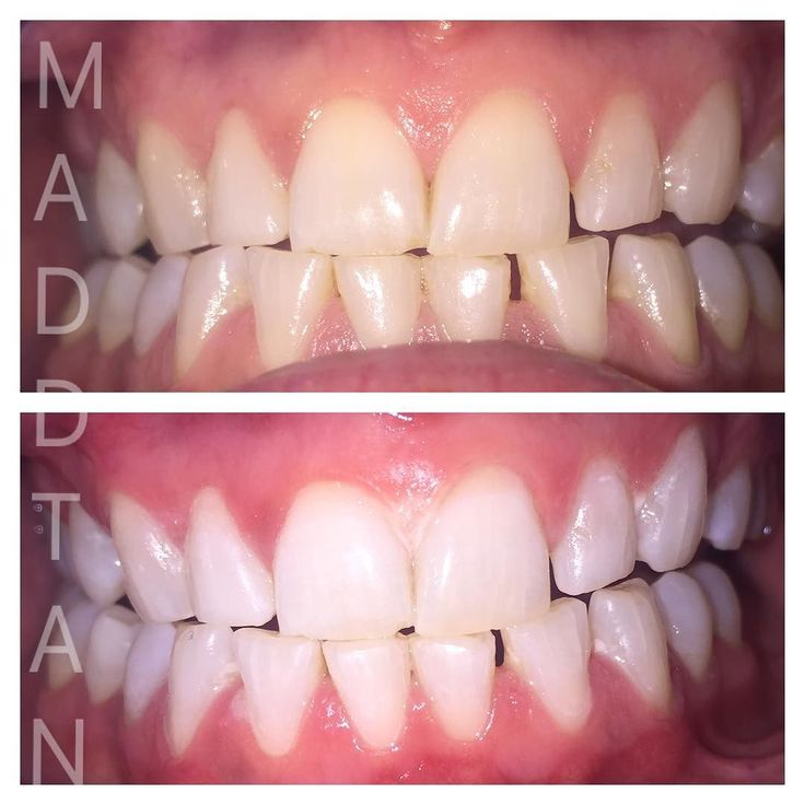 This heavy smoker was super impressed with her results! -Natural plant & mineral based laser gels -No preservatives (less to no pain) -Enamel strengthening -Non-abrasive Gentle process -1 hr. -Safe for existing dental work ( we can even whiten your crowns to what they were installed at!!!!) -Immediate results #teethwhitening #albuquerque#burque #505 #love #instagood #photooftheday #girl #beautiful #happy #igers #instadaily #bestoftheday #nofilter #teethwhitening #laserwhitening #plantbased…
