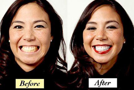 Amazon.com: truewhite Advanced Plus Teeth Whitening System ...