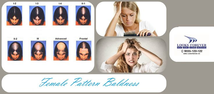 #Female #Baldness  Causes of #Female #Baldness: Each #hair grows from its #follicle, #baldness occurs when the #hair #follicle shrinks over time, resulting in shorter and finer #hair.   Reasons of #Female #Pattern #Baldness: #Aging Changes in the levels of #androgens (male #hormones).  Family history of male or #female #pattern #baldness  For Details http://bit.ly/2f7npwc or Call on +919555122 122