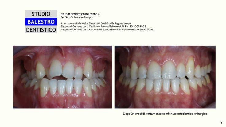 Chirurgia Ortognatica http://www.studiodentisticobalestro.com/2017/02/chirurgia-ortognatica.html