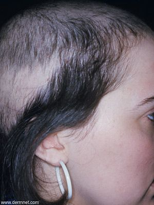 When Hair Loss Is Not Genetic