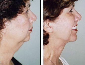 The Facial Revitalization Exercises Guide For Ladies And Gents To Get A No Surgery Facelift