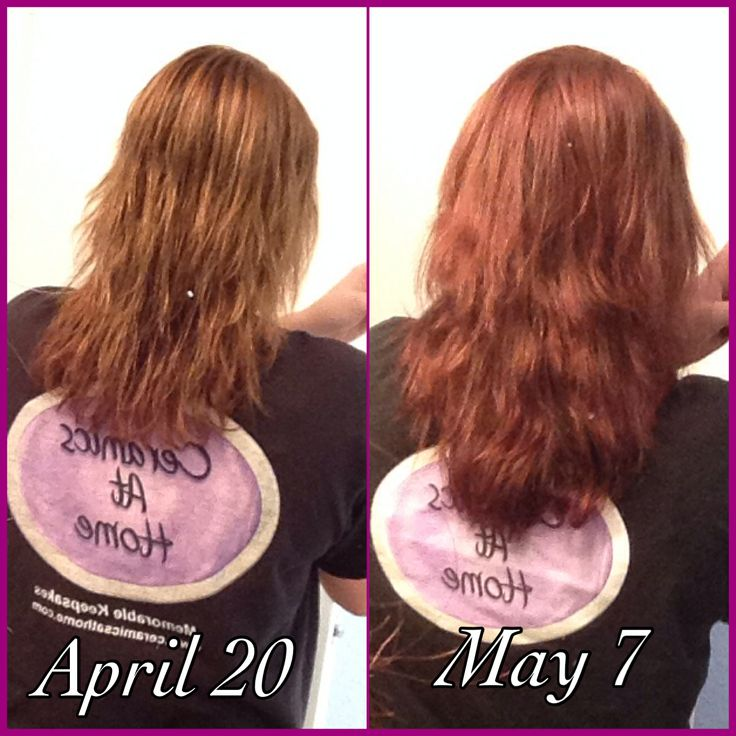 Biotin Results Before And After Really Works Hair