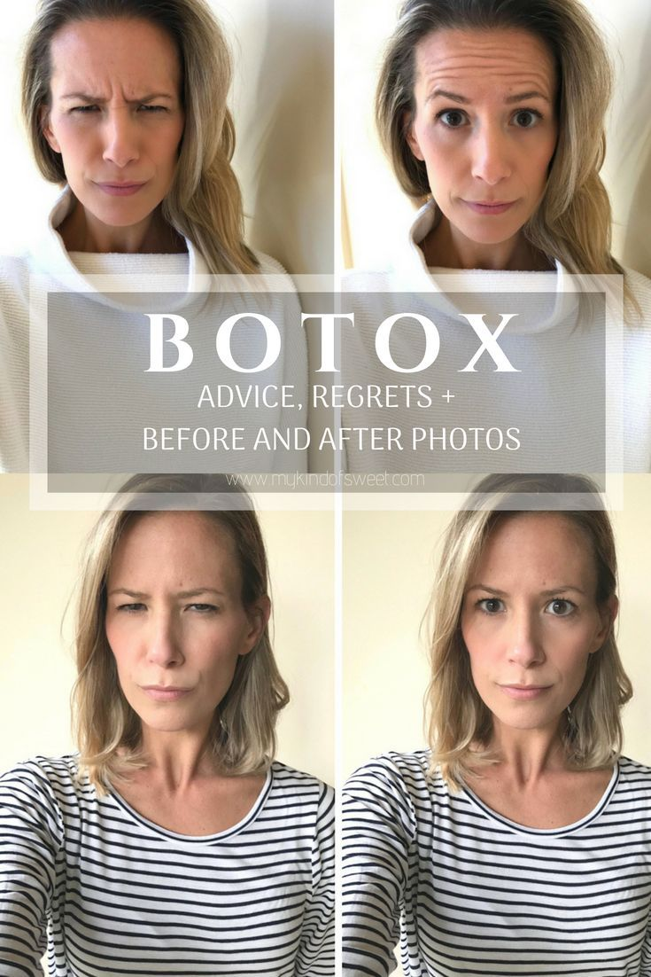 Botox: Advice, Regrets And Before + After | The Stylish Mom Life