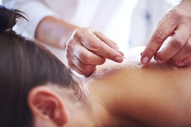 Acupuncture for Back Pain and Neck Aches