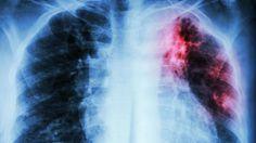 Cualquier persona que fuma (o haya fumado) necesita probar esta bebida para limpiar los pulmones #salud