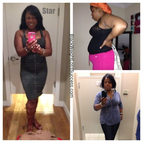 My weight loss journey pictures los angeles photo 6