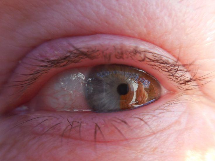 Susanne - left eye (she has sectoral heterochromia!! :)