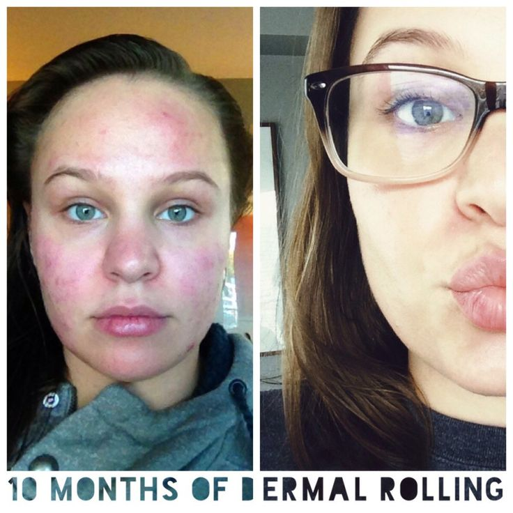 19 Best Images About Derma Roll On Pinterest Skin Care